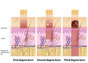 Skin burns degree Stock Illustration