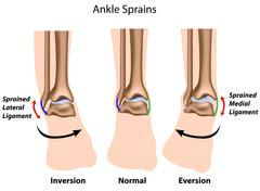 Ankle sprains - stock illustration
