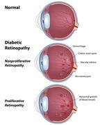 Diabetic retinopathy - stock illustration