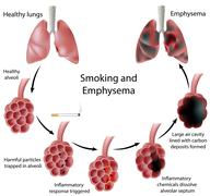 Smoking and Emphysema - stock illustration