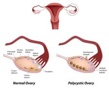 Normal ovary and Polycystic ovary syndrome - stock illustration