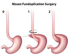 Nissen Fundoplication Surgery Stock Illustration