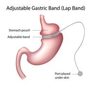 Gastric Band Weight Loss Surgery Stock Illustration