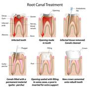 Root canal treatment - stock illustration