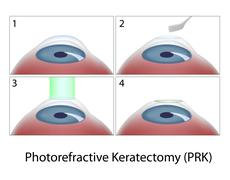 Photorefractive Keratectomy (PRK) surgery Stock Illustration