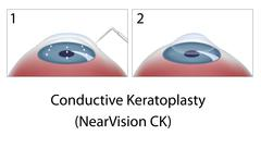 Conductive Keratoplasty eye surgery - stock illustration