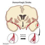 Brain hemorrhagic stroke - stock illustration