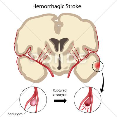 Stock Illustration of Brain hemorrhagic stroke