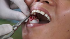 dental tooth extraction - stock footage