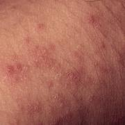 Eczema atopic dermatitis symptom skin texture Stock Photos