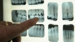 Dental Checkup 14 Stock Footage