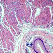 Stratified squamous epithelium Stock Photos