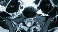 Intervertebral disc MRT Stock Footage