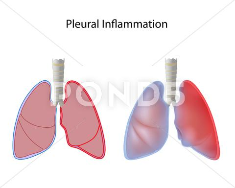 Stock Illustration of Pleurisy