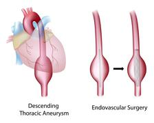 Thoracic aortic aneurysm - stock illustration