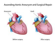 Stock Illustration of Ascending aortic aneurysm