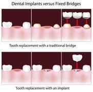 Dental implants versus fixed bridges Stock Illustration