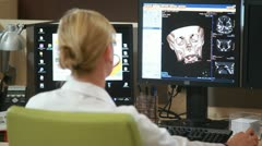 Doctor analysing 3D skull model - stock footage