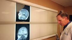 Surgeon studying MRI of Brain on light panel Stock Footage