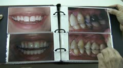 Teeth Before And After - stock footage