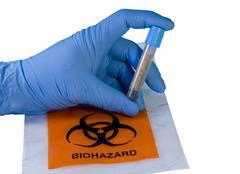 hand and biohazard vial - stock photo