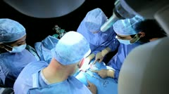 Surgical Team Working Hospital Operating Room Stock Footage
