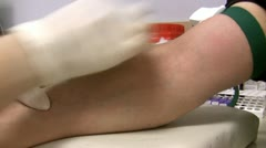 Nurse drawing blood sample for a test - stock footage