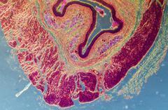 Stock Photo of stratified squamous epithelium