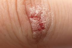 wound peroxidized - stock photo