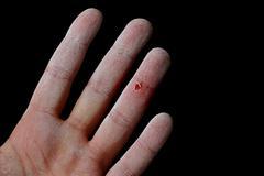 hurt hand - stock photo