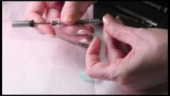 Acupuncture (medicine): Su Jok needle is inserted in a hand Stock Footage