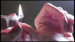 Acupuncture medicine. Su Jok moxa being fired, on a hand. Stock Footage