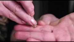 Su Jok Acupuncture medicine: a moxa is placed on a hand after using a touch pen. Stock Footage
