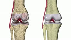 Stock Video Footage of Osteoarthritis : Knee joint with ligaments and cartilages