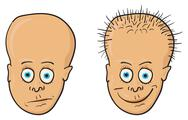 Illustration - patient with a bald head and hair Stock Illustration