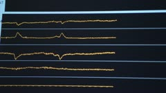 Close on brain waves on monitor Stock Footage