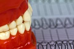 dental tools and equipment on dental chart - stock photo