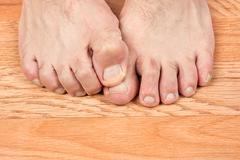 Itchy feet Stock Photos