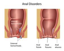 Anal disorders Stock Illustration