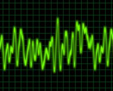 Stock Photo of audio wave