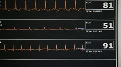 Close-up of Heart rate monitor Stock Footage