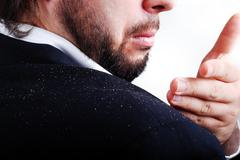 Dandruff issue on man's sholder Stock Photos
