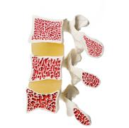 Artificial model of osteoporosis Stock Photos