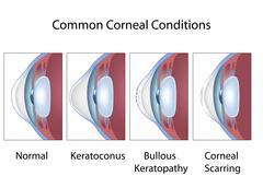 Common corneal conditions Stock Illustration