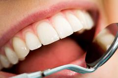 close-up of patient's open mouth before oral checkup with mirror near by - stock photo