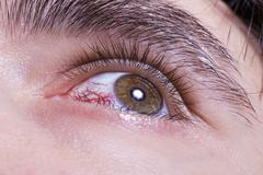 green men eye with red blood vessels - stock photo