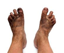 Dirty unhygienic foots Stock Photos