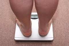 women legs with overweight - stock photo