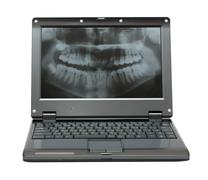 small laptop with dental picture of jaw - stock photo