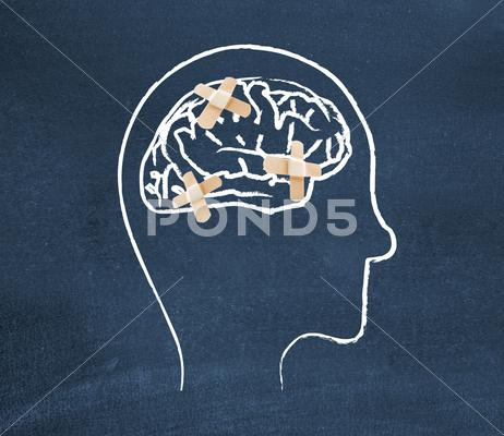 Stock Illustration of mentally ill